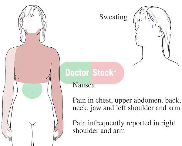 breast sharp pain